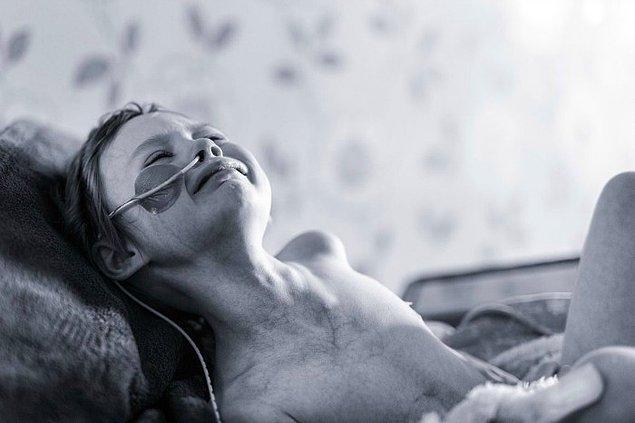 Jessica'nın verdiği mücadeleyi anlattığı bu fotoğraf ise bir çocuğun kanser karşısında yaşadığı yıkımı bütün gerçekliğiyle anlatıyor.