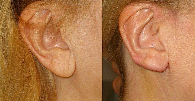 5. Kulak memesi küçültme
