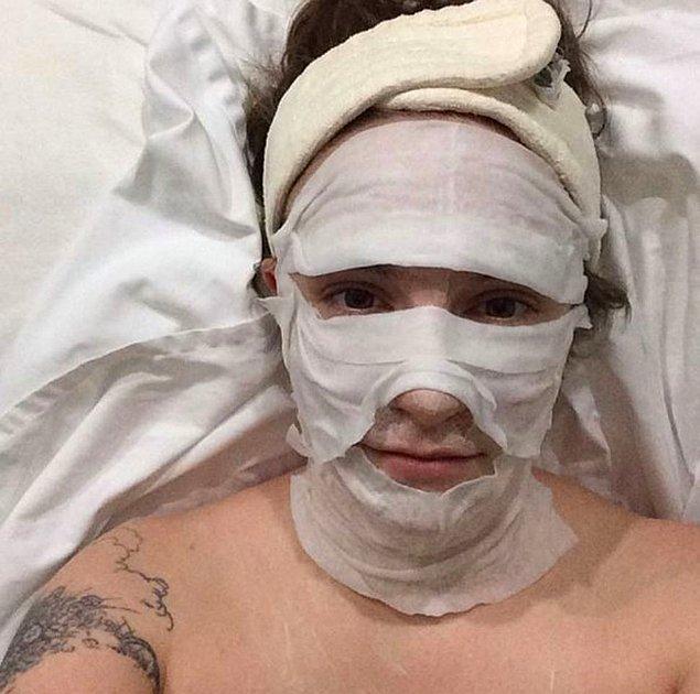 6. Lena Dunham tülbentleri ıslatıp ıslatıp suratına koymuş gibi dursa da aslında bu da pahalı bir bakım...