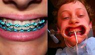 Diş Teli Denen İlletle Uğraşmış Olan Her İnsanın İçini Sızlatacak 19 Manzara