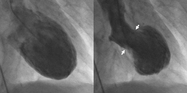 İlk belirtiler tıkanmış bir arteri taklit ediyor ve kalp krizi belirtilerini gösteriyor.