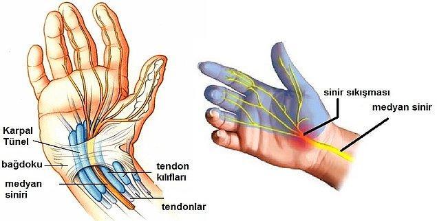 """Median sinir, parmakları hareket ettiren diğer tendonlarla beraber, """"karpal tünel"""" denen dar bir boşluk içinden geçer."""