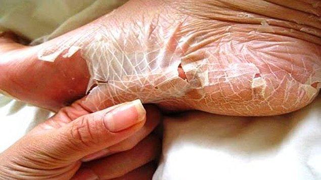 4. Yılan gibi deri değiştirebilirsiniz. Özellikle ayaklarınızdaki deri zamanla kurur.