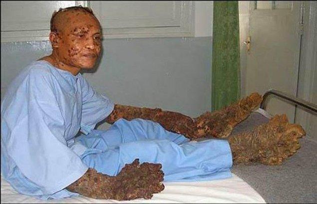 Dokuz ay süren bir dizi ameliyattan sonra Dede'nin ellerindeki ve ayaklarındaki köklerin birçoğu temizlendi.