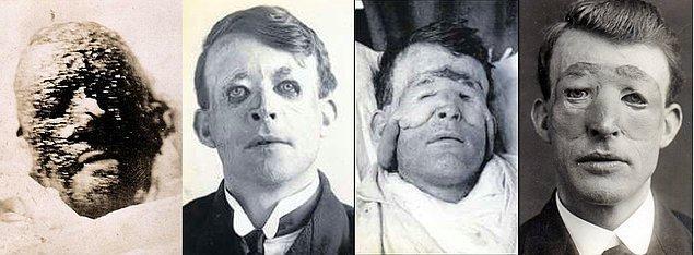 Walter Yeo, Birinci Dünya Savaşı esnasında yüzüne feci yaralar almış.