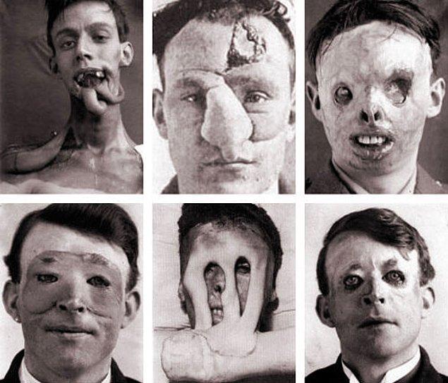 Ne şanslı ki, 1 sene sonra plastik cerrahinin ilk isimlerinden Harold Gillies'in aklına bir fikir gelmiş.