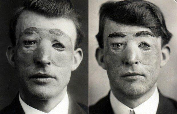 TIL that in 1917, WWI soldier Walter Yeo became the first ...  Walter Yeo Skin Graft