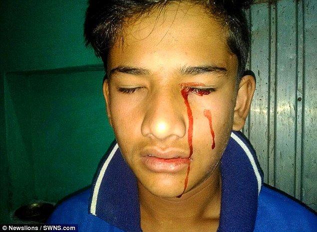 """""""Stigmata çocuk"""" olarak adlandırılan Hint genç, 10 yaşından bu yana kan ağlıyor."""