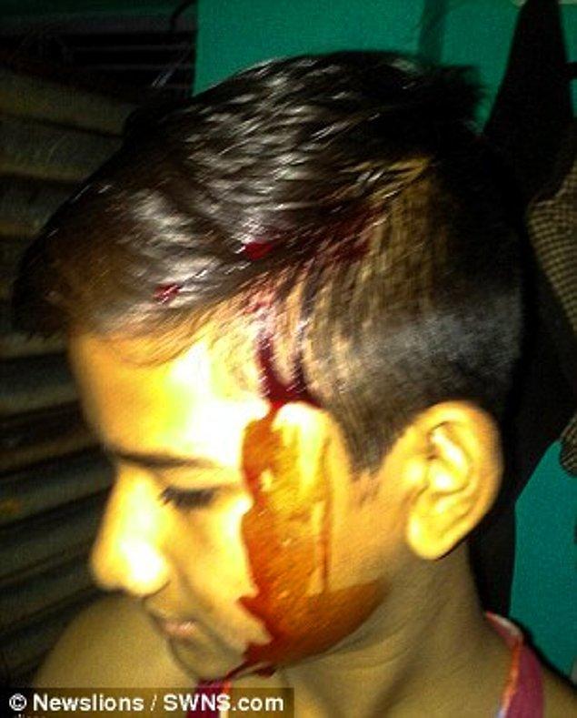 Hindistan'da tıp bilimleri alanındaki doktorlar tarafından incelemeye alınan Akhilesh'e henüz resmi bir teşhis konulamadı.