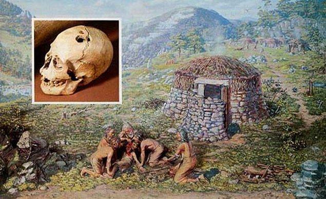 Teknik Avrupa'da, Rönesans Dönemi'nde berberler tarafından uygulanmaya başlandı.