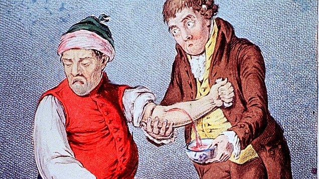 Kan alma işlemi sırasında hastalar, kan akışını hızlandırmak için elleriyle beyaz bir çubuğu sıkıyorlardı.