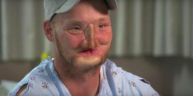 Dudaklarının yaralanmasından dolayı yemekleri ağzına atmakta oldukça zorlanıyordu. Burnundaki görüntüden dolayı rahatsızlığın engellenmesi için kendisine protez bir burun takıldı.
