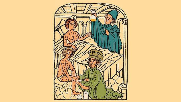Bu ilk başta size garip gelebilir dostlar. Fakat salyangoz suyu, Ortaçağda cinsel yolla bulaşan hastalıklar için kullanılan bir panzehirdi.