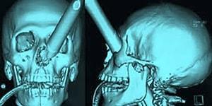 1400 Yıl Önce Kafatası Paramparça Edilerek Öldürülen Adamın Yüzü Yeniden Hayat Buldu!
