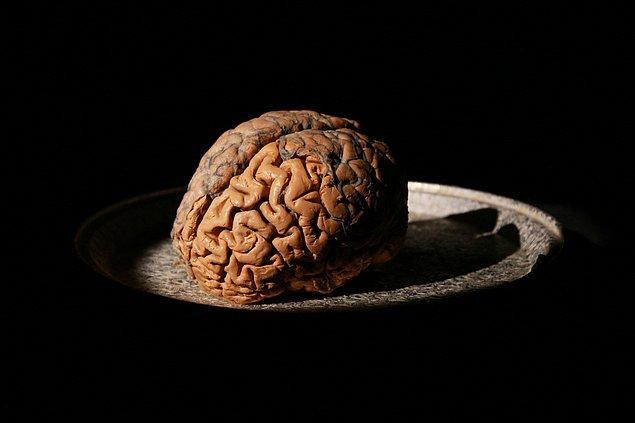 Aşık olduğumuz sırada, beynin ödülle ilgili bölgesi aktif hale geliyor.