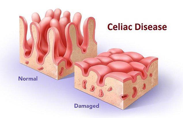 2. Çölyak hastalığı ince bağırsaklarınıza zarar vererek etkilerini göstermeye başlar.