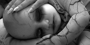 Zamanla Tüm Vücudu Bir İskelete Dönüştüren Düşman Başına Hastalık: Taş Adam Sendromu