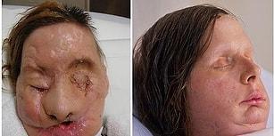 Yüz Nakil Ameliyatı Olmuş Hastaların 13 Operasyon Öncesi/Sonrası Fotoğrafları