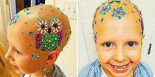 Saçkıran Rahatsızlığının Çılgın Saç Modeli Gününe Engel Olmasına İzin Vermeyen Güzel Kız!