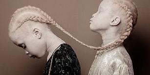 Sıradışı Güzellikleriyle Moda Sektöründeki Algıları Yıkıp Geçen Brezilyalı Albino İkizler