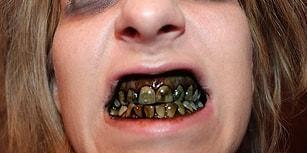 Diş Çürümesi ve Diş Çekimi ile Alakalı Okudukça Dişinizi Ağrıtacak Kadar İlginç Bilgiler