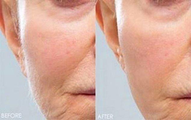 Tıraş işlemi cildin üst tabakasını soyarak kendini yenilemesini sağlıyor; böylece ince kırışıklar, gözenekler ve pürüzler hafifliyor.