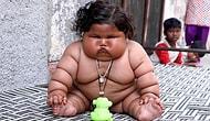 Sürekli Yemek Yeme Arzusu 8 Aylık Çocuğu 17 Kiloya Ulaştırdı