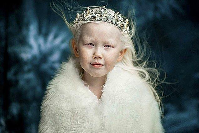 Öncelikle Nariyana ile tanışalım. Nariyana, dünyanın her yerinden ajansların peşinden koştuğu 8 yaşında albino bir kız.