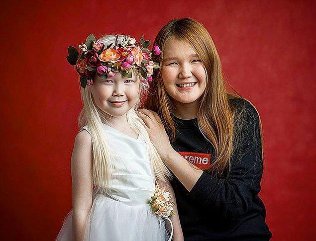 Hem anne hem de baba tarafındaki bütün bireyler içerisinde albino olarak dünyaya gelen Nariyana. Ailesinde de tek sarı saçlı olan ayrıca.