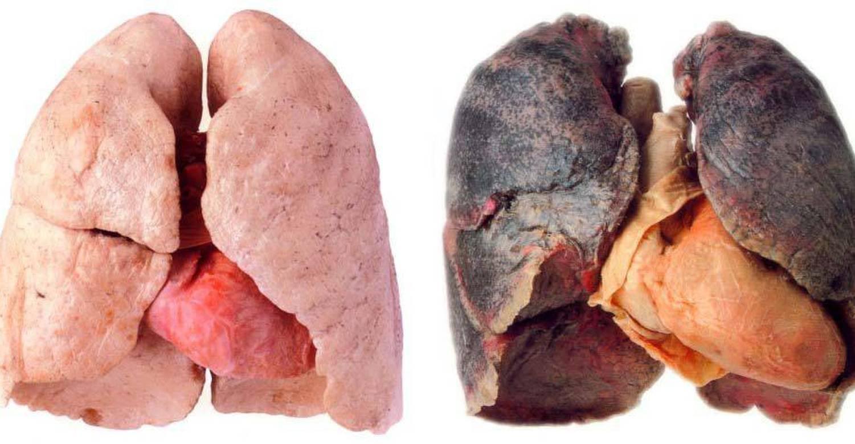 """sigara ve ciğerler ile ilgili görsel sonucu"""""""
