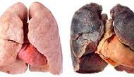 Sigara Tiryakilerine Alışkanlıklarını Sorgulatacak Bir Akciğer Hastalığı: KOAH