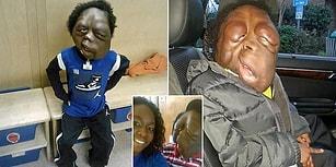 Yüzünün Şekli Dev Tümörler Sebebiyle Bozulmuş 8 Yaşındaki Çocuğun Üzücü Hikayesi