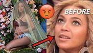 Beyoncé'nin Dudak Estetiği Olduğuna Dair İddialara Cevap Geldi!