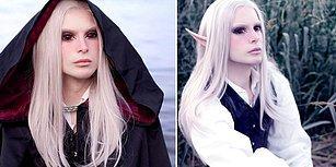 Elf'e Benzeyebilmek İçin Servet Harcayan Genç: Luis Padron