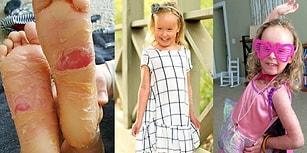 Ender Görülen Rahatsızlığı Yüzünden Sürekli Deri Değiştiren Küçük Kız!