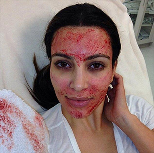 11. Kim Kardashian'ın sağlıkla parlayan cildinin sırrı ise biraz kanlı!