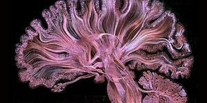 Yaşayan Bir Sanat Eserine Dönüşen İnsan Beyni