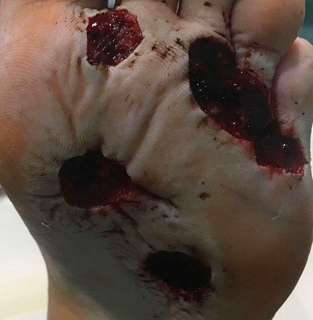 Çıplak ayak ile spor salonunda duş alan bir adam, et yiyen bir enfeksiyon kaptı.