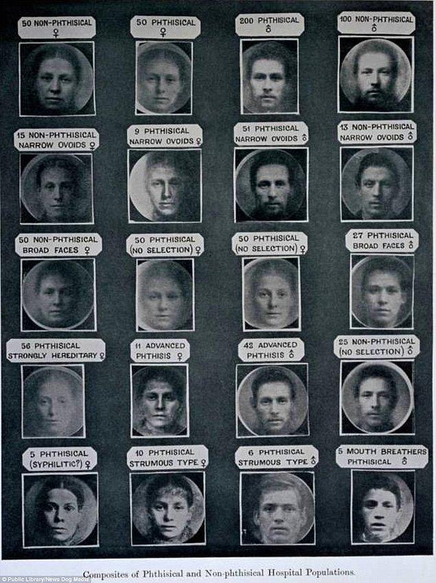 10. İngiltere'de hastalık sahibi olması daha olası görülen insan tiplerinin fotoğrafları bir araya getirilmiş, Londra 1912.