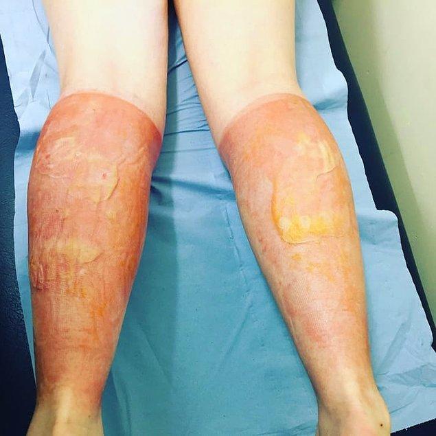 Üçüncü gün Nisbet acılarının dayanılmaz noktaya geldiğini ve doktorların kabarcıkların içindeki iltihabı boşaltıp, bacaklarını yeniden sardıklarını söyledi. İyileşme süreci başlamıştı.