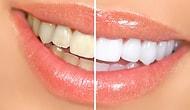 Sadece 10 Saniyenizi Ayırdığınızda Dişlerinizi İnci Gibi Bembeyaz Yapacak Enfes Buluş: Amabrush