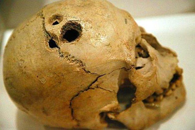 İlk çağlarda akıl hastalarını, kötü ruhların işgal ettiğine inanıldığı için kafatası deliniyor, yani trepanasyon uygulanıyordu.