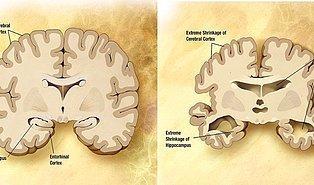 Alzheimer'dan Korunmak İçin Tüketebileceğiniz 13 Bilişsel Gücü Kuvvetlendirici Besin