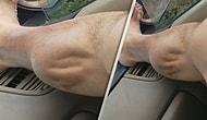 Baldır Kasına Giren Krampın Ürkütücü Görüntüsü
