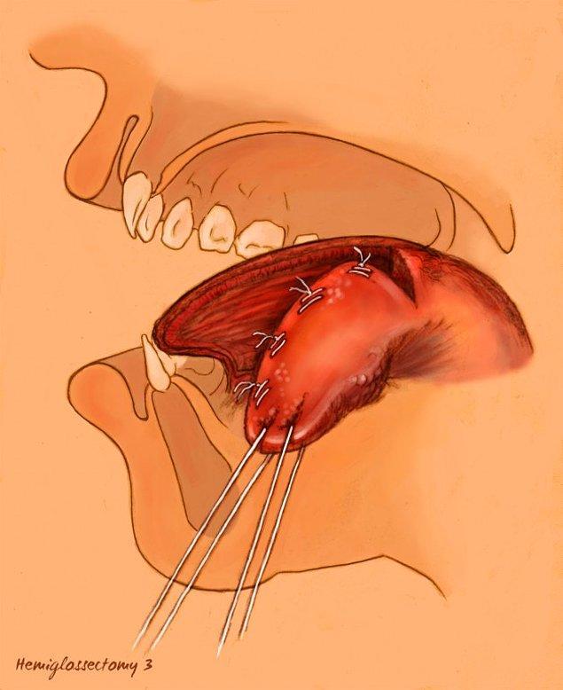 6. Kekemelik için uygulanan hemiglossektomi