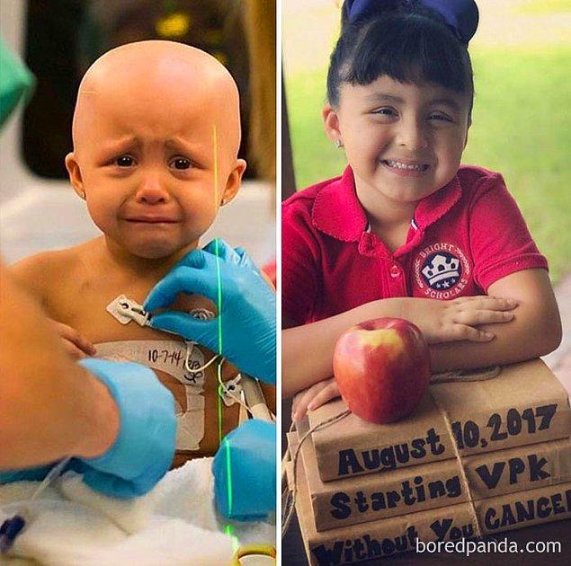 6. Minik Sophia da 3 yıldır kansersiz bir hayat sürüyor...