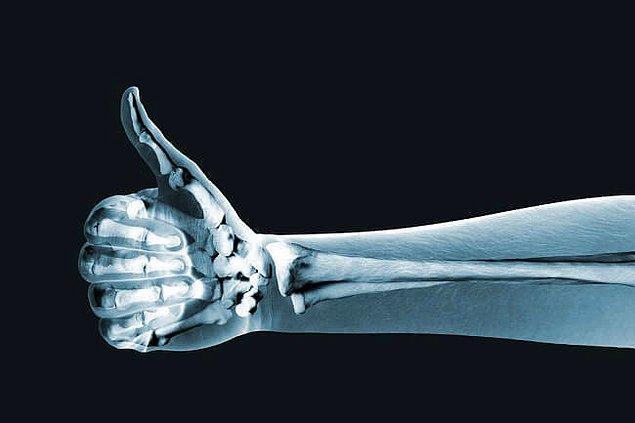 10. Kemik yapısını geliştirmede katkı sağlar.