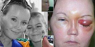 Avustralya'da Tedaviler Tükendi! Kontak Lensinden 'Göz Kemiren Parazitler' Kapan Kadın