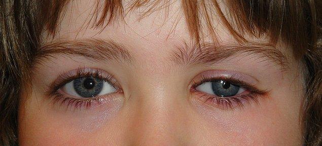 Parry-Romberg sendromunda gözlenen en yaygın bulgu görme bozukluğudur.