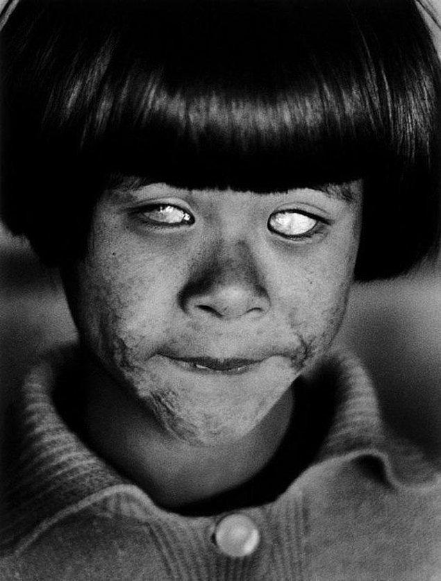 20. Nükleer patlamayı görmüş gözler, Hiroshima, Japonya, 1945.